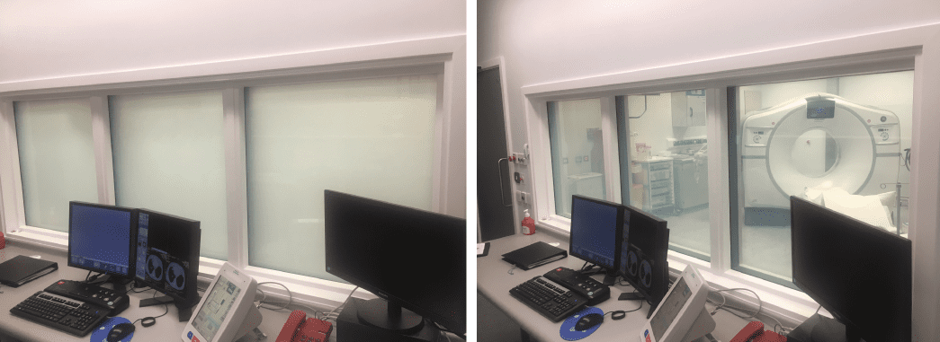 Healthcare smart glass privacy screen